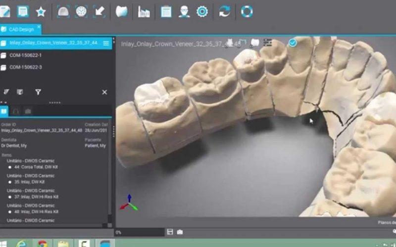 Un laborator de tehnică dentară din Bistrița se dotează cu tehnologie 3D de peste 1 milion de lei, prin fonduri europene