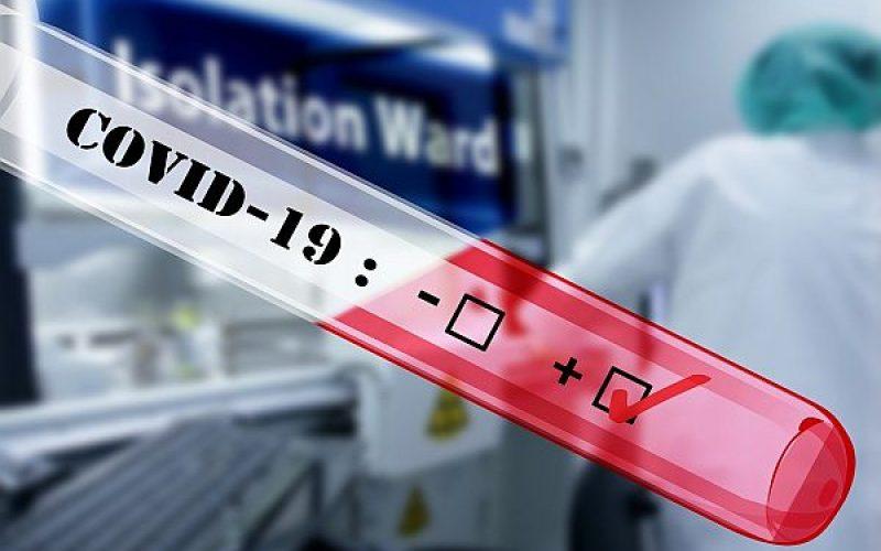 Bosch a dezvoltat un test pentru coronavirus care oferă rezultate fiabile în 39 de minute
